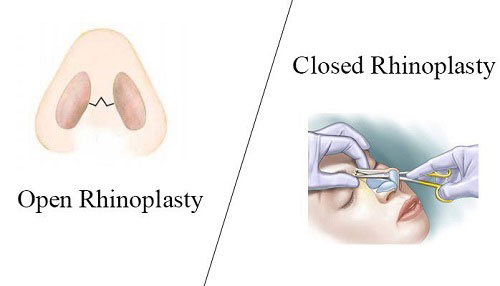Closed-Rhinoplasty-Open-Rhinoplasty-iran