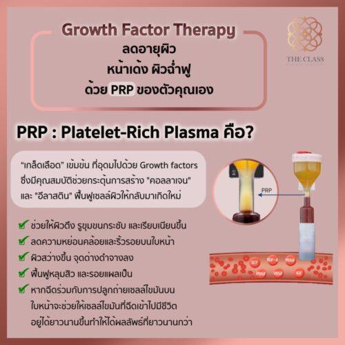 PRPคือ-The Class Clinic