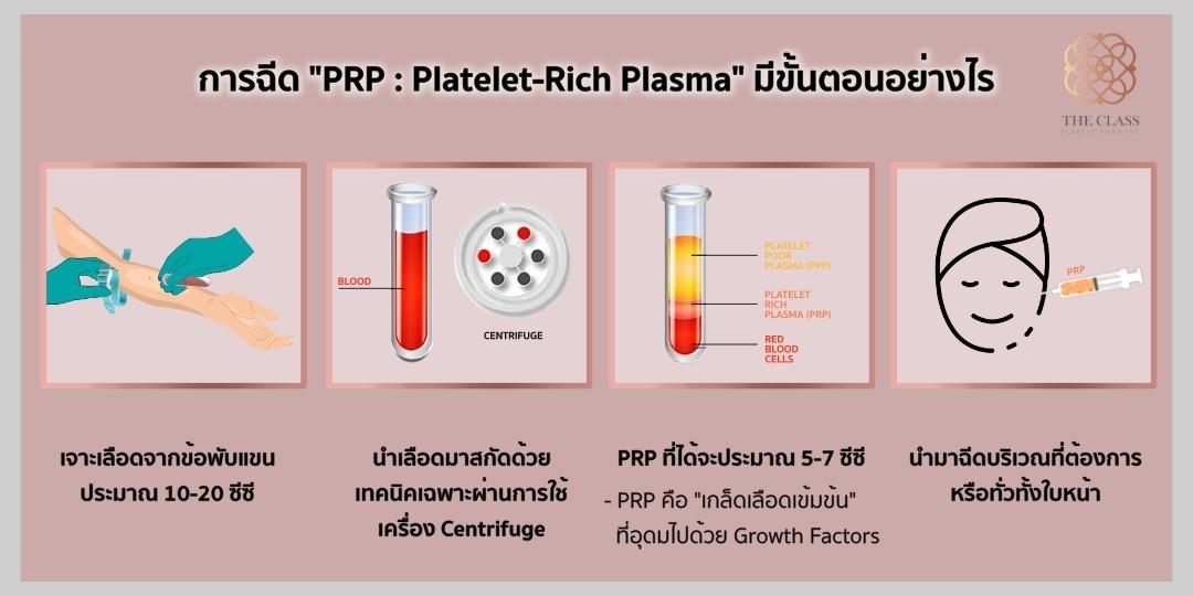 PRP ขั้นตอน-The Class Clinic