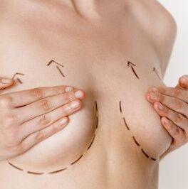 breast-lift-e