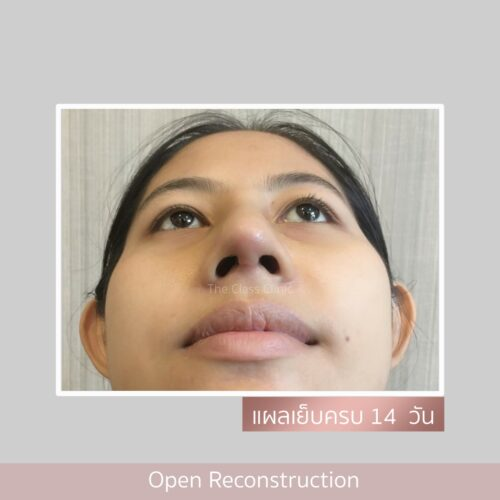 review nose2