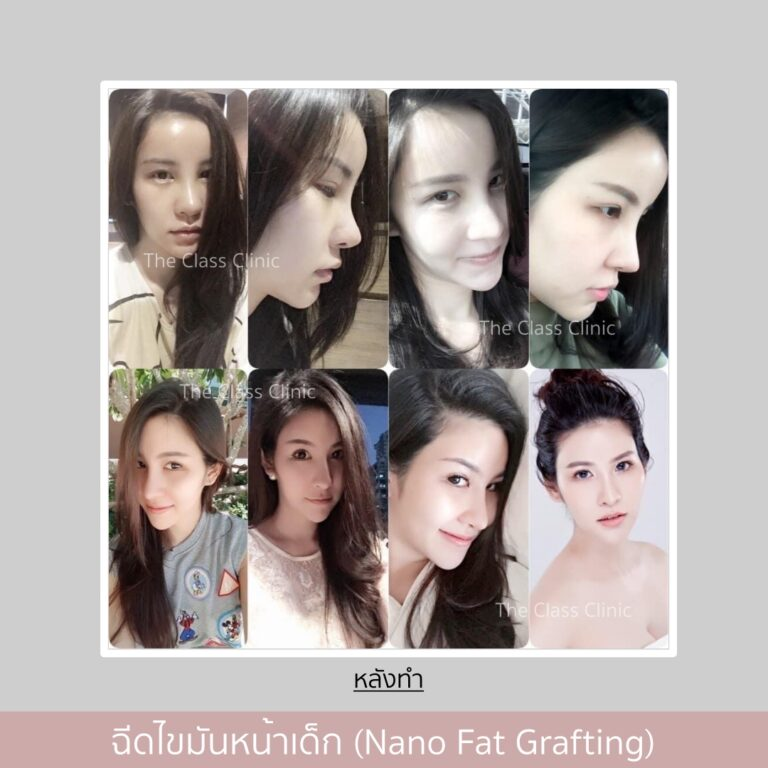 จัดเรียงไขมันหน้า (Facial Fat Transfer)
