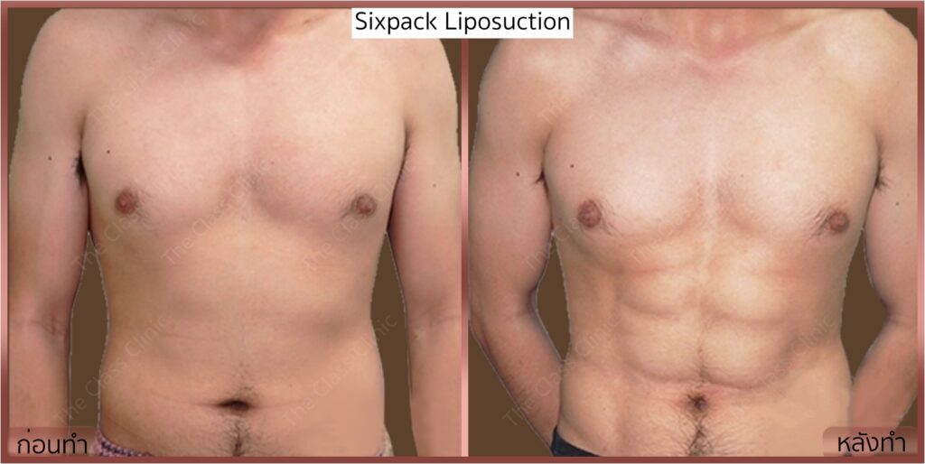 Lipo_sickpack-male3-front