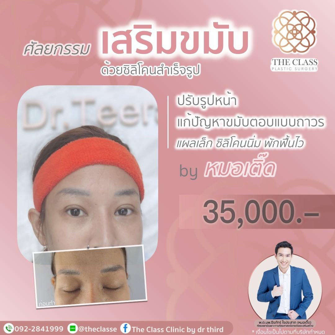 Pro-ศัลยกรรมเสริมขมับ-240621