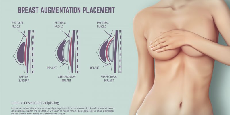 Breast Augmentation Placement